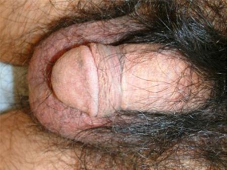治療前:包茎手術+亀頭増大
