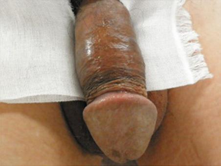 治療前:亀頭増大+陰茎増大