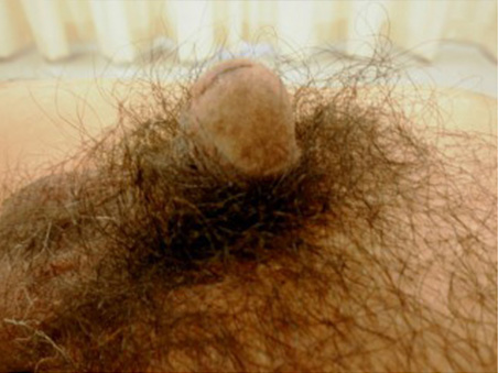 治療前:長茎手術