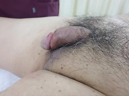 治療前:長茎手術+亀頭増大