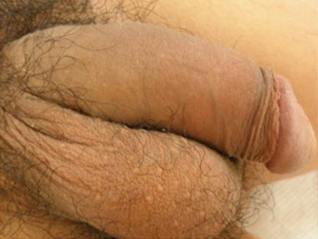 治療前:長茎手術+陰茎増大