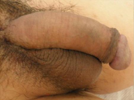 治療前:長茎手術+亀頭増大+陰茎増大