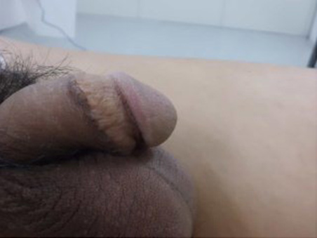 治療前:他院手術痕修正+長茎手術