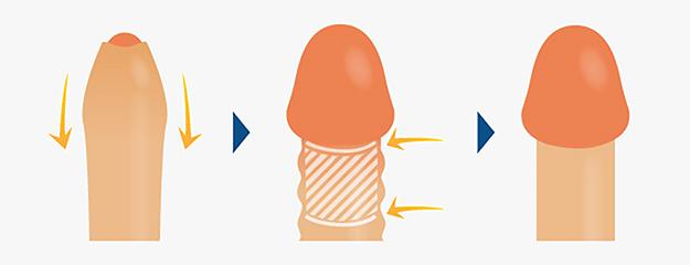 メンズライフクリニックの包茎⼿術の技術力とデザイン力